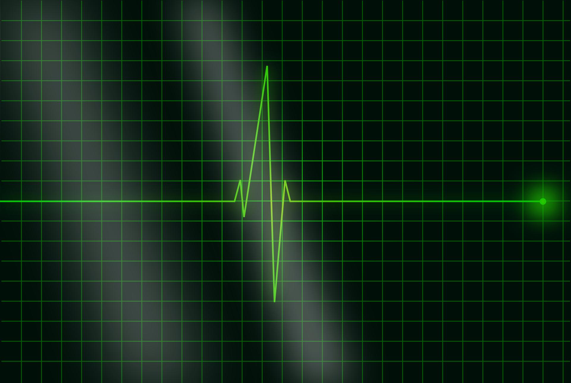 electrocardiogram-36732